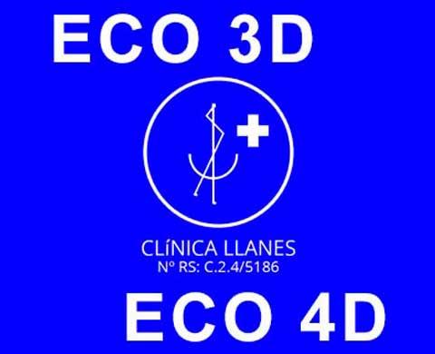 Ecografía 3d y 4d en clínica Llanes