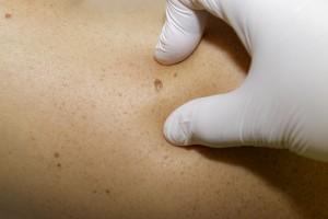 Dermatología en Clínica Llanes