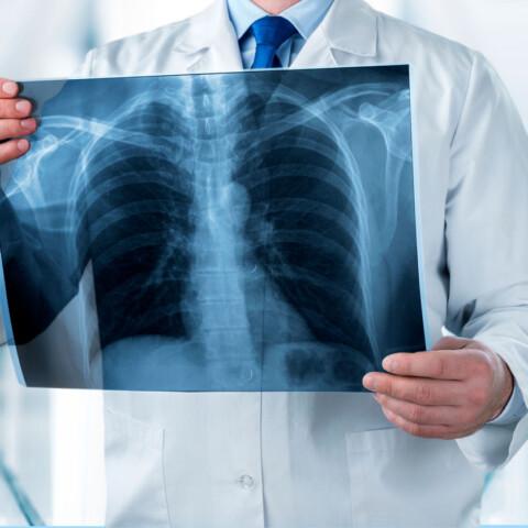 radiodiagnostico clinica llanes